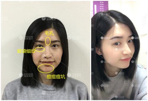 春节将至,想打瘦脸针、水光针,还想做双眼皮,到底先做啥?